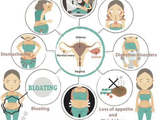 Know These: 10 Signs and Symptoms of Ovarian Cancer